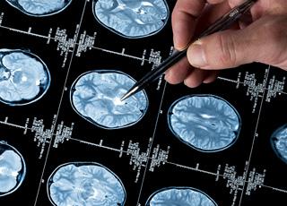 L'imagerie cérébrale permet-elle de lire dans l'esprit ?